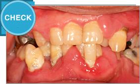 歯周病簡単チェック